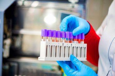 Кубанские врачи провели 5 тыс. 98 исследований на коронавирус